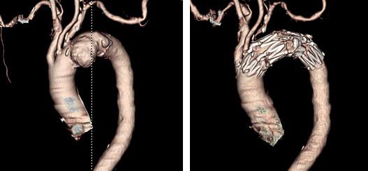 遠位弓部大動脈瘤に対するステントグラフト