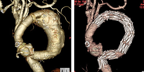 胸部下行大動脈瘤に対するステントグラフト