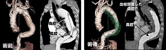 解離性大動脈瘤に対するステントグラフト
