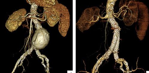 腹部大動脈瘤に対するステントグラフト